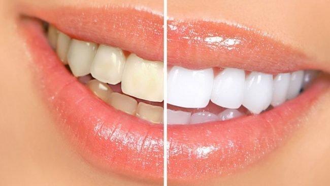 otbelit-zuby-v-domashnix-usloviyax-bez-vreda_002