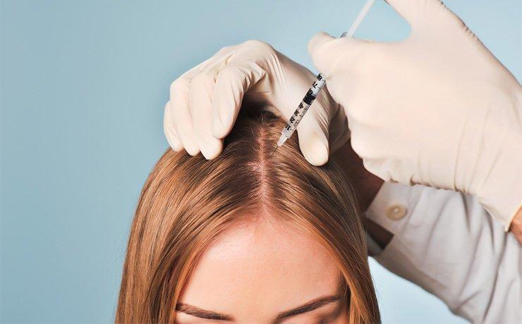 мезотерапия волосистой части головы aurevitelli pepto hair