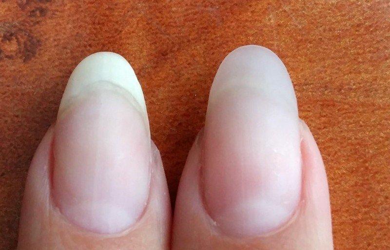 укрепление ногтей акриловой пудрой под гель лак