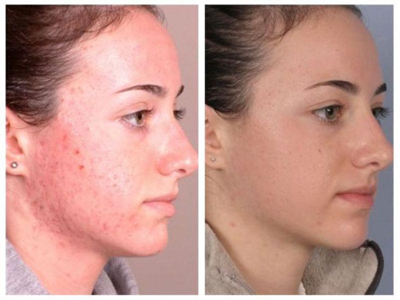 Лицо до и после леченения акне