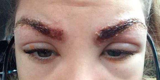 Аллергия на татуаж бровей