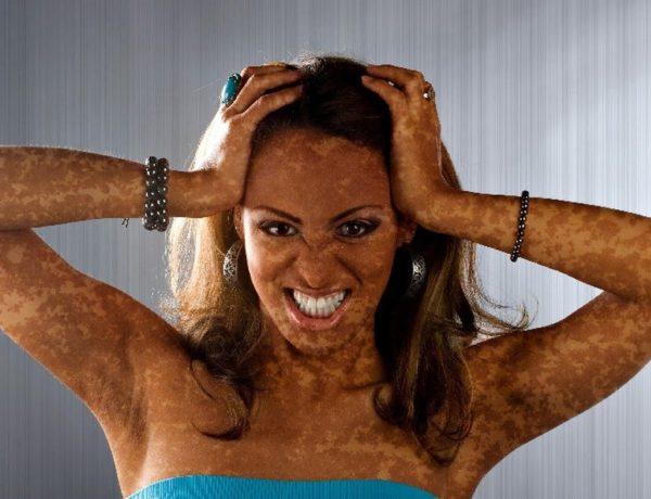Пигментные пятна на лице и теле девушки