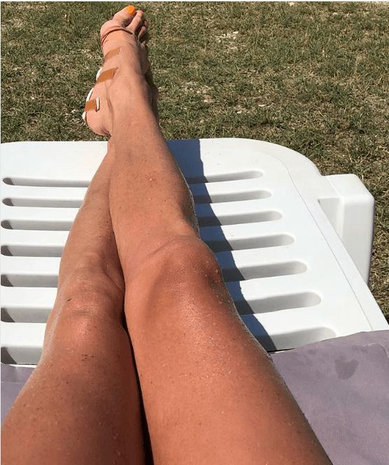 Волочкова поранила ногу морским ежом