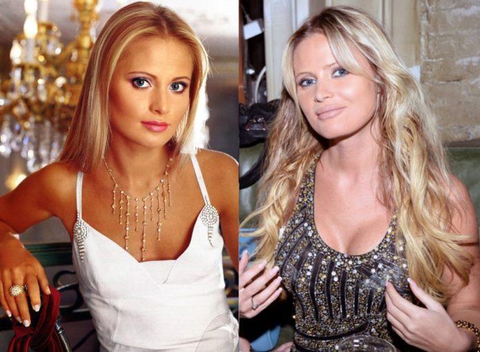 Дана Борисова до и после пластики груди