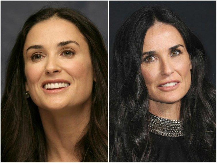 Фото звезд до и после ботокса
