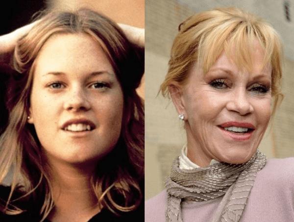 Мелани Гриффит до и после ботокса