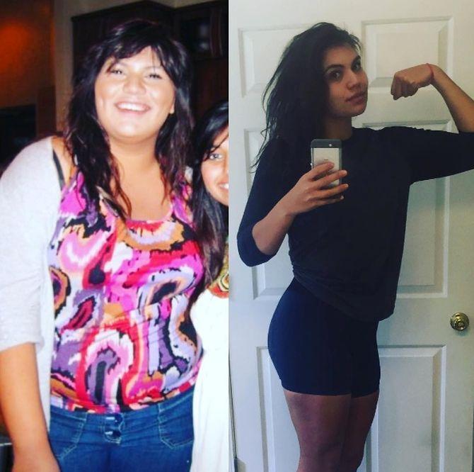 Лаура Мичетич до и после похудения