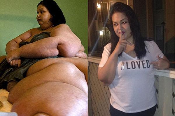 Майра Росалес до и после похудения