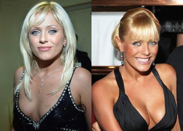 Юлия Началова до и после пластики груди