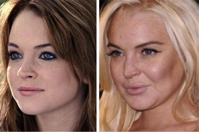 Линдси Лохан до и после ботокса