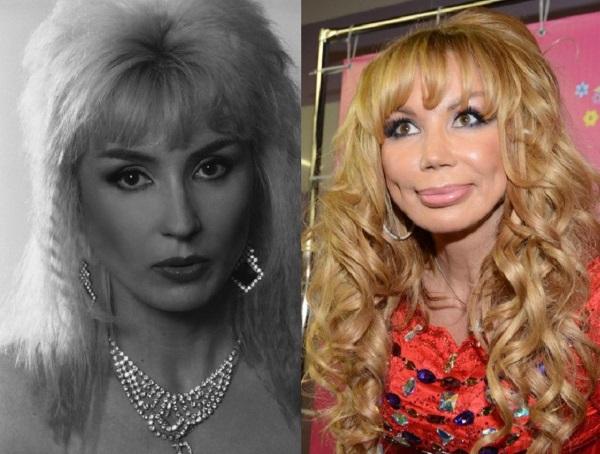Маша Распутина до и после ботокса