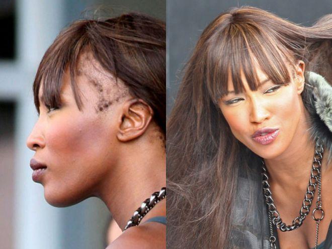 Следы от париков на голове Наоми Кэмпбелл