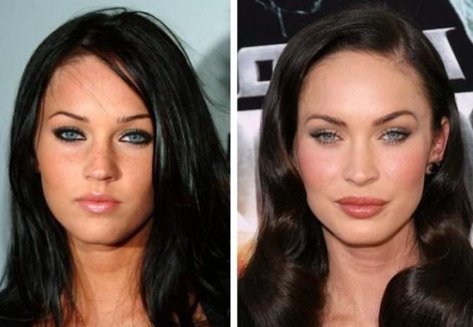 Меган Фокс до и после блефаропластики