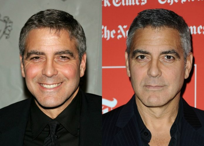 Джордж Клуни до и после блефаропластики
