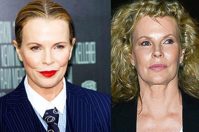 Ким Бесингер до и после блефаропластики