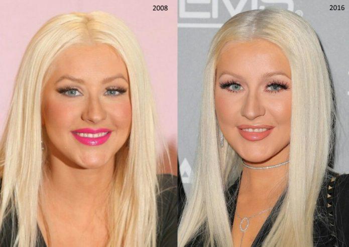 Кристина Агилера до и после блефаропластики