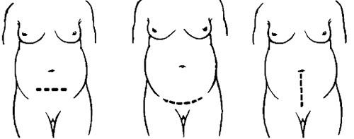 Виды разрезов при кесаревом сечении