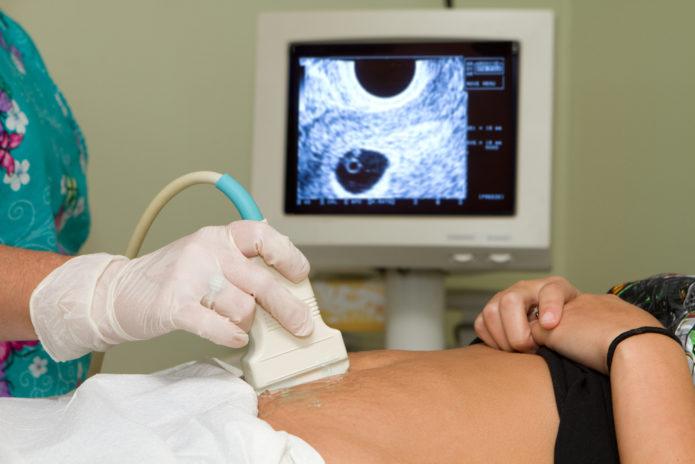 Проведение процедуры абдоминального УЗИ