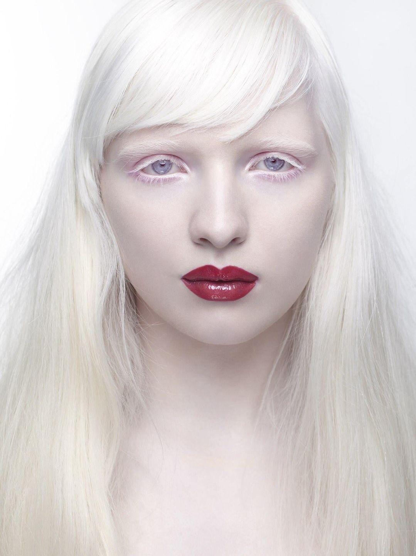 альбинос человек фото глаза началом