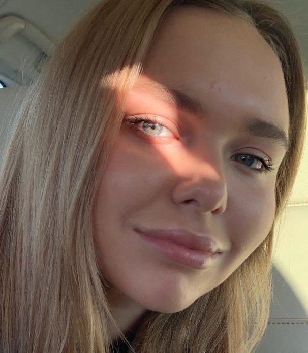 Стефания Маликова «накачала» губы