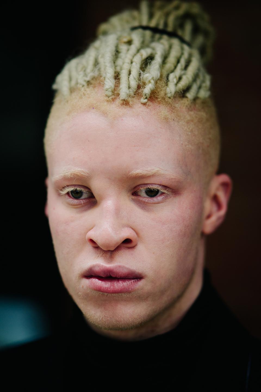 фото альбиносов африканцев орудиях