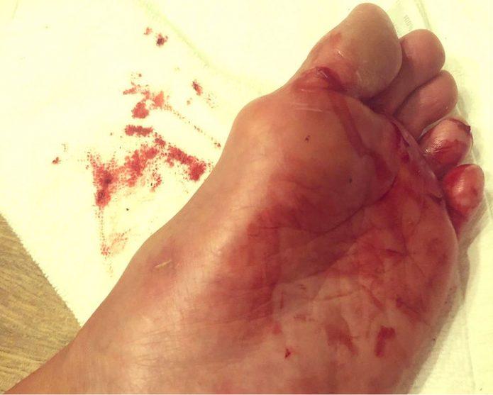 Волочкова раны на ноге