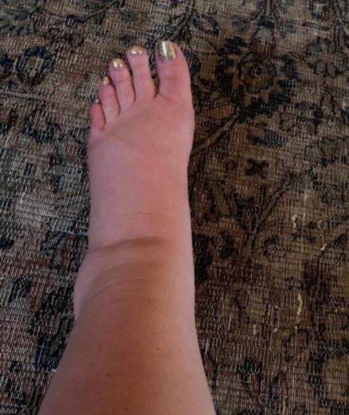 Ноги Джессики Симпсон во время беременности