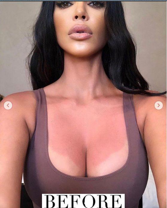 Ким Кардашьян ожоги груди