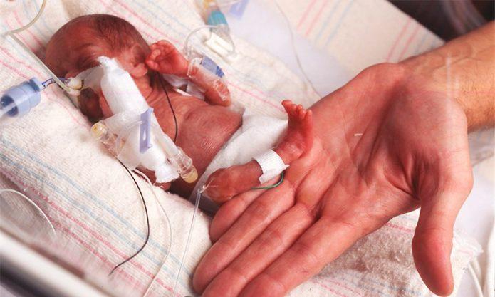 Рука мужчины держит ножку недоношенного младенца