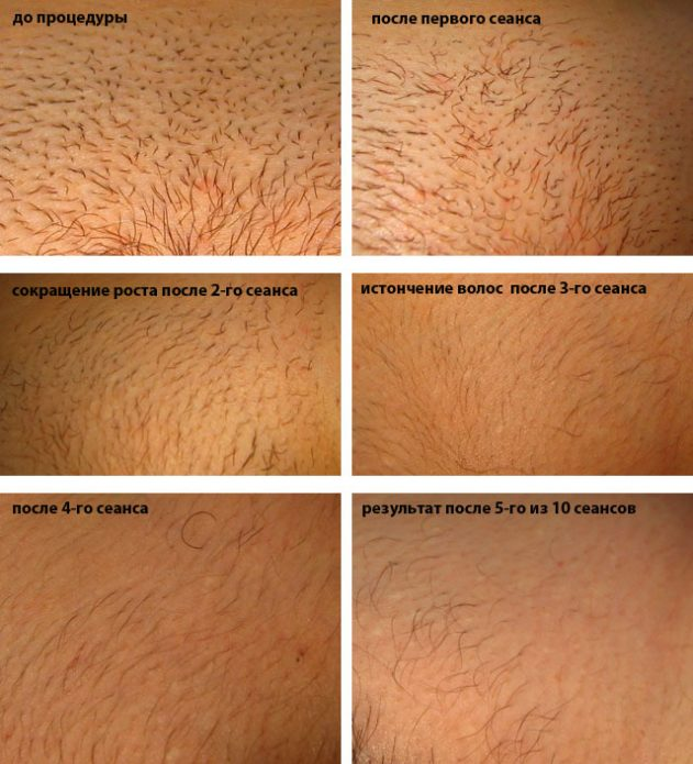 Влияние восковой депиляции на дальнейший рост волос