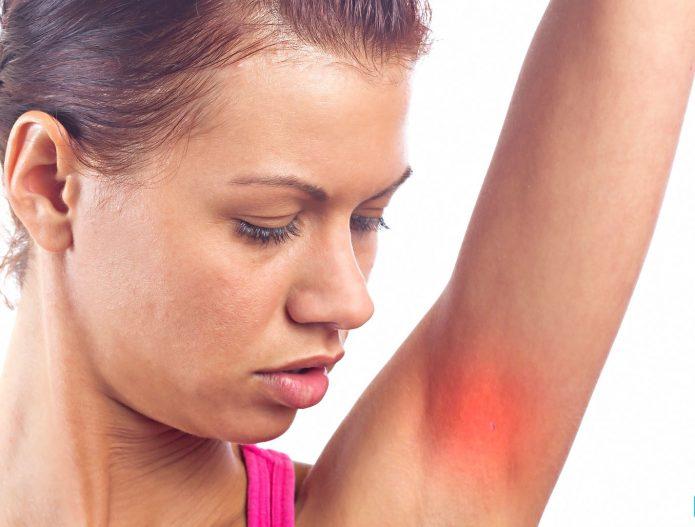 раздражение кожи подмышечных впадин