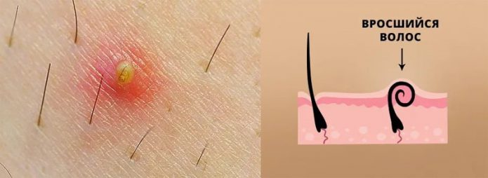вросший волосок на теле человека и схема появления вросшего волоса
