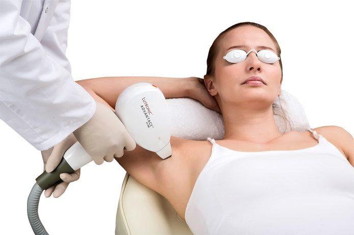 Специалист делает женщине лазерную эпиляцию подмышек