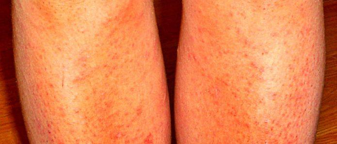 аллергическая реакция на бритьё ног