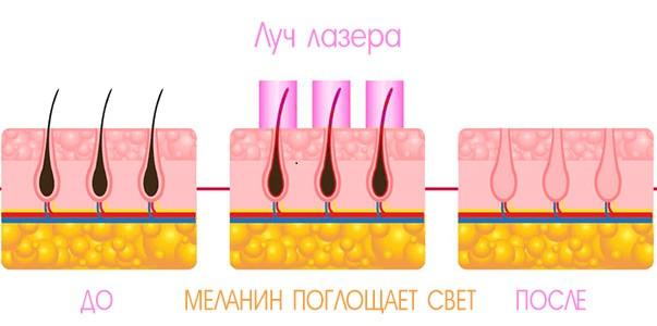 Воздействие лазера на волос