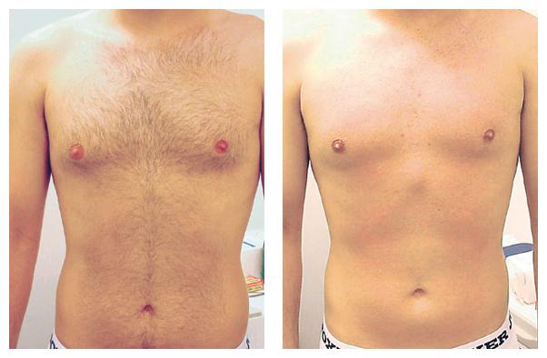 Грудь мужчины до и после лазерной эпиляции
