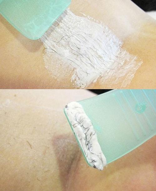 Фото до и после использования крема для депиляции