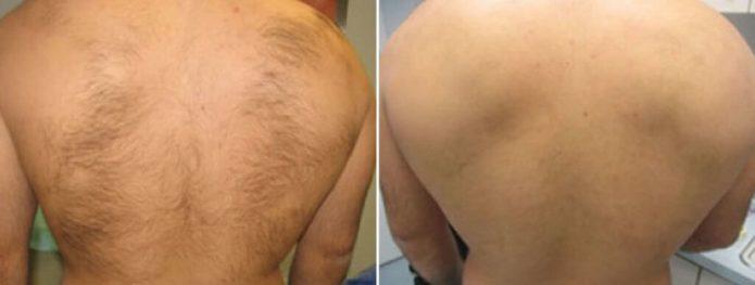 удаление волос на спине фото до и после