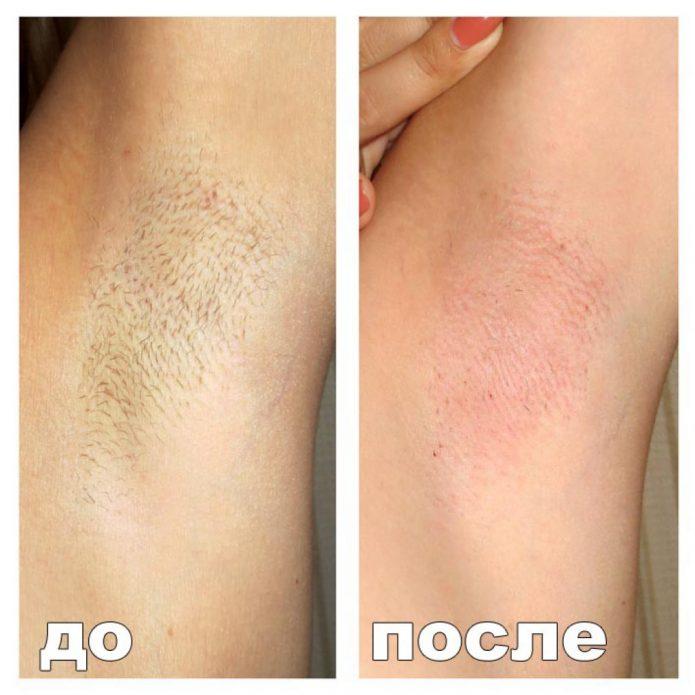 энзимная эпиляция подмышечных впадин до и после