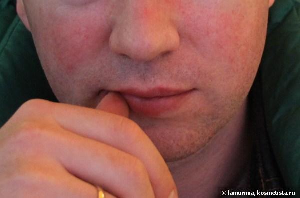 Дерматит на лице у мужчины