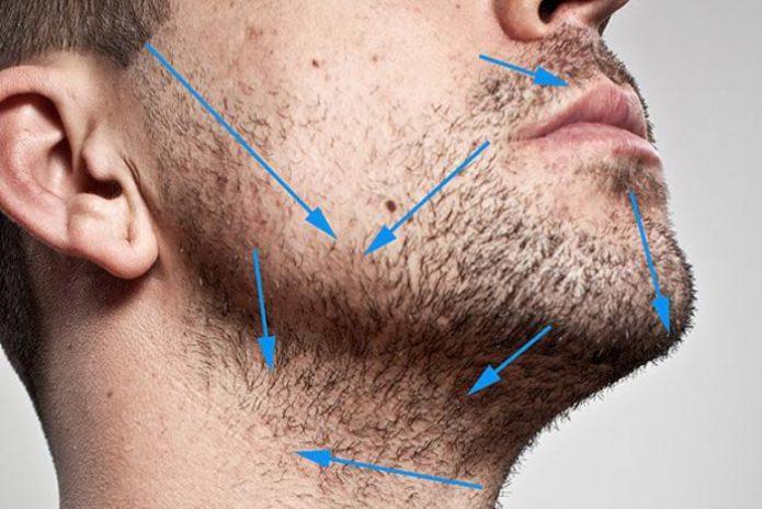 Направление линий бритья