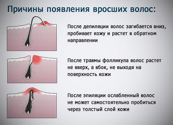 Причины появления вросших волос при неправильной депиляции