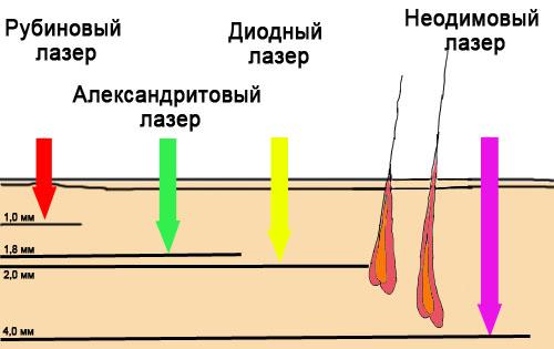 сравнение различных видов лазерного луча