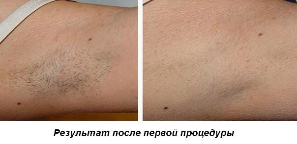 первая процедура лазерной эпиляции до и после