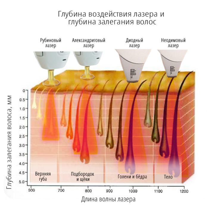 Глубина воздействия разных типов лазеров