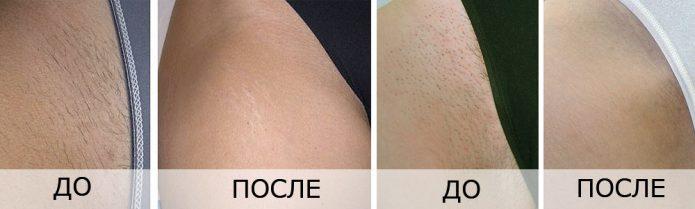 Фото кожи до и после лазерной эпиляции