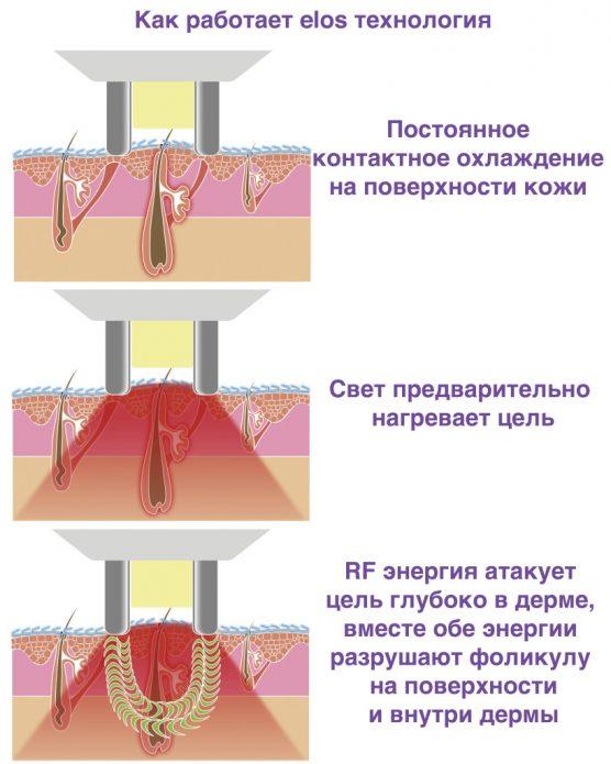 ELOS-эпиляция