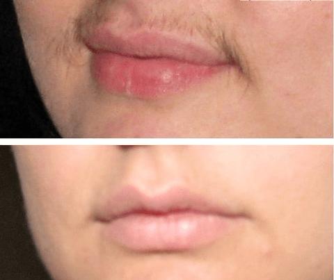 Две фотографии нижней части женского лица с усиками до фотоэпиляции и без них после ряда процедур