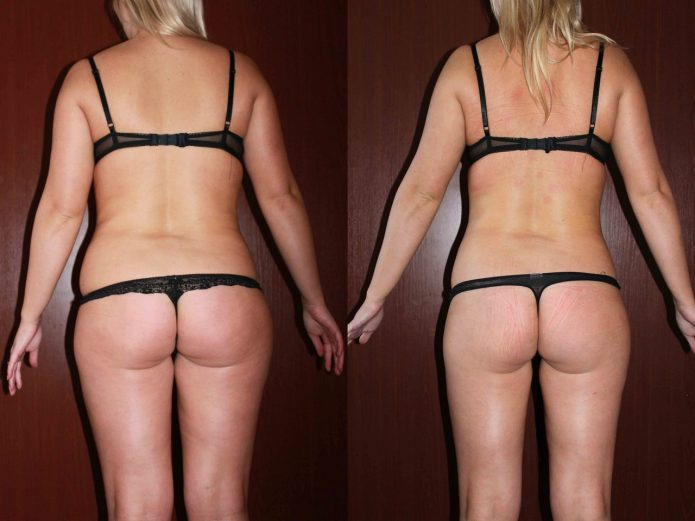 фото до и после прессотерапии таким массажем