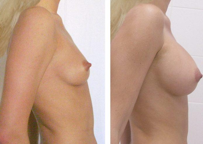 Девушка до маммопластики и после